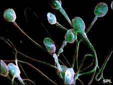 Hombres que no producen esperma con más riesgo de padecer cáncer