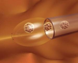 Más de 500 donantes de esperma del Reino Unido han 'engendrado' más de diez niños cada uno