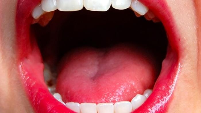 La detección oral de VPH puede sugerir infección genital
