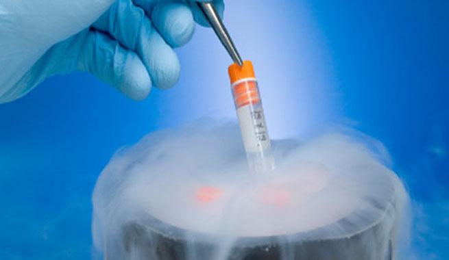 Preservación de la fertilidad de la mujer. Vitrificación de ovocitos
