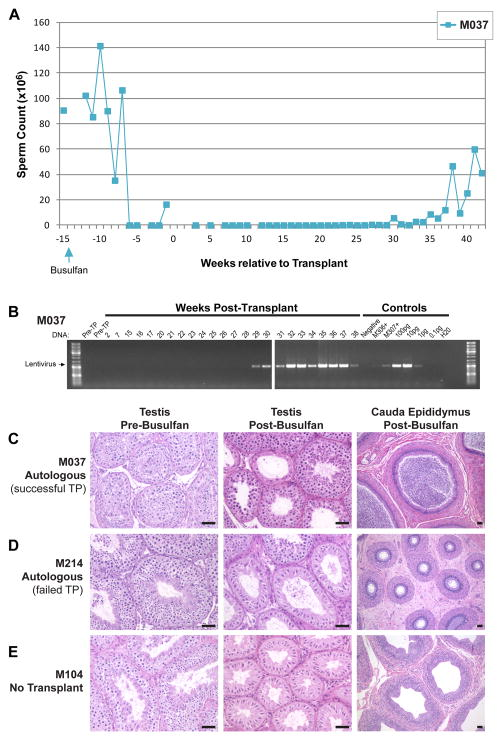 Fig 3. la recuperación de la espermatogénesis después de un trasplante autólogo SSC