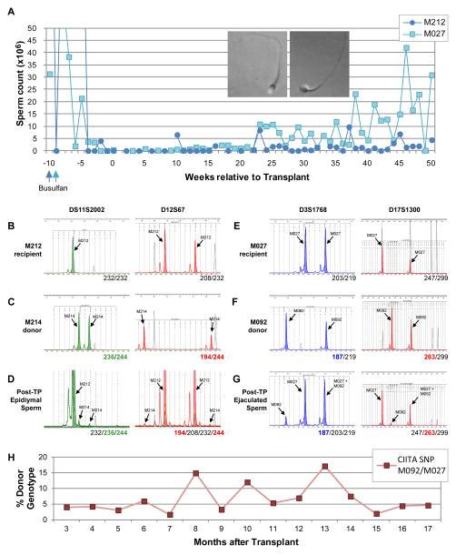 Fig 4. espermatogénesis donantes en dos receptores de trasplante alogénico determinada por la huella de ADN microsatélite de espermatozoides destinatario