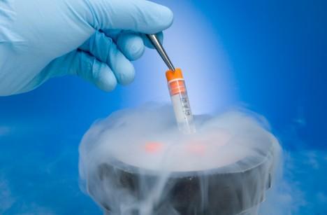 Evaluación de los parámetros seminales en muestras criopreservadas por más de 10 años