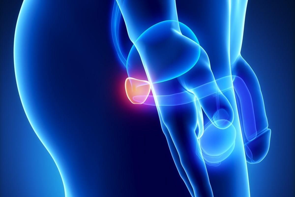 Resultado de imagen de prostata 3d