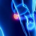 El 90% de los cánceres de próstata se diagnostica en fase inicial