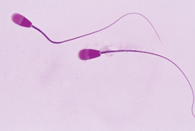La terapia secuencial para la fertilidad masculina produce el mismo resultado que las inyecciones