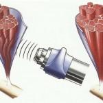 La disfunción eréctil puede mejorar con ondas de choque