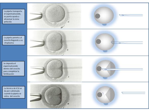 La micro inseminación