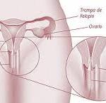 La Histerosalpingografía