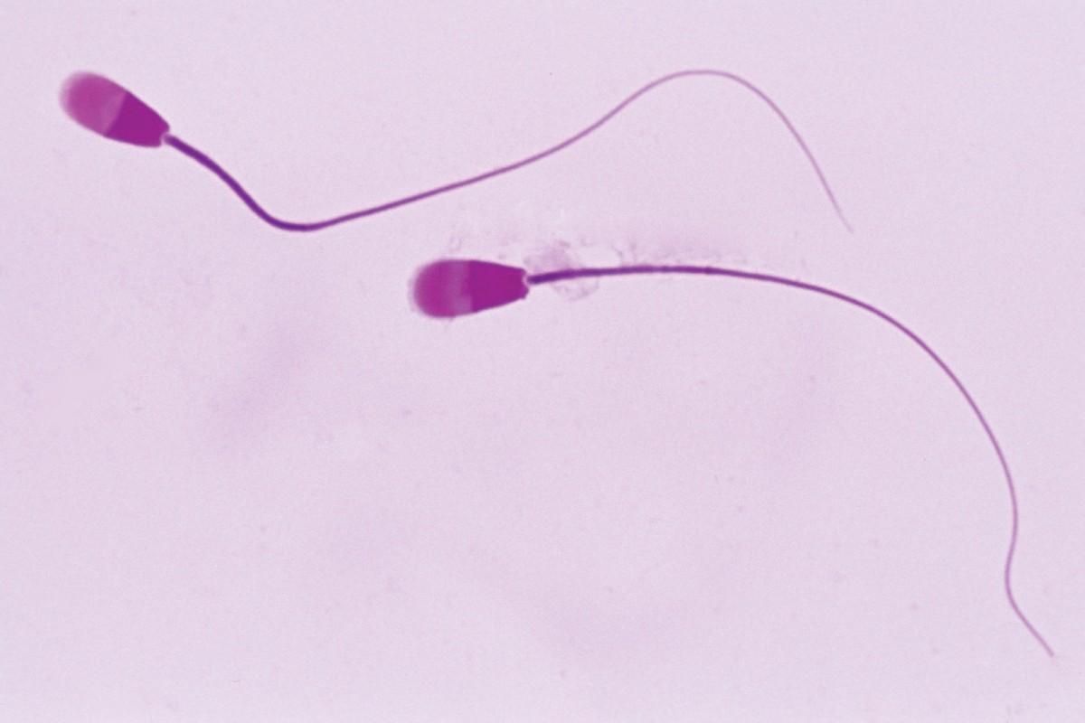Eyacular con frecuencia, mejora calidad de espermas