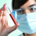 prueba no invasiva para la detección de la endometriosis.
