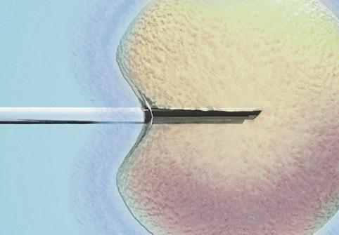 Prueba de diagnóstico de espermatozoides mejora, puede determinar mejor el tratamiento de fertilidad para parejas