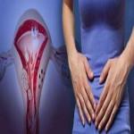 7 millones de mujeres mexicanas padecen endometriosis