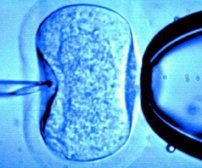 Ovarios poliquísticos y la fertilidad