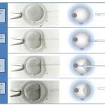 La micro inseminación ICSI