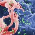 Nueva forma agresiva de VIH identificado en Cuba