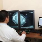 México: En 2011, 30 de cada 100 mujeres resultaron con cáncer de mama
