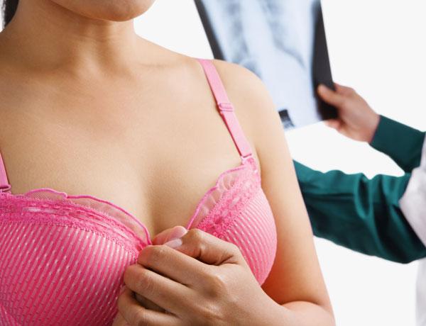 ¿El sujetador puede provocar cáncer de mama?